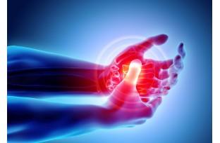 Arthritis: Symptoms & Treatments