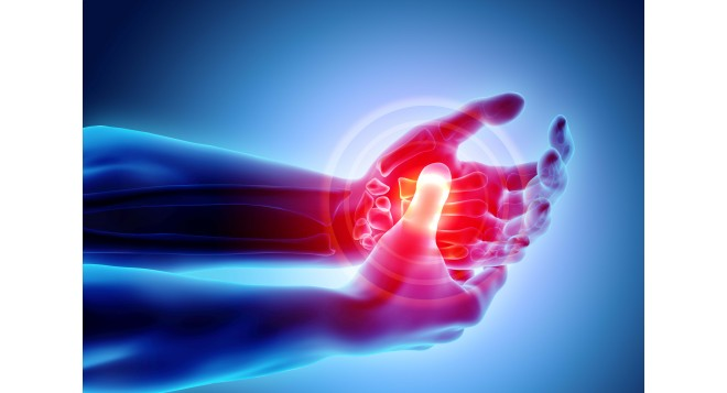 Understanding Arthritis: Symptoms, Treatments, and Medications