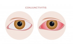 Conjunctivitis: What Is Pink Eye?