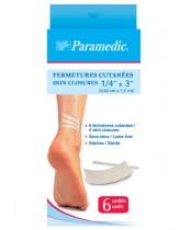 Paramedic Skin Closures