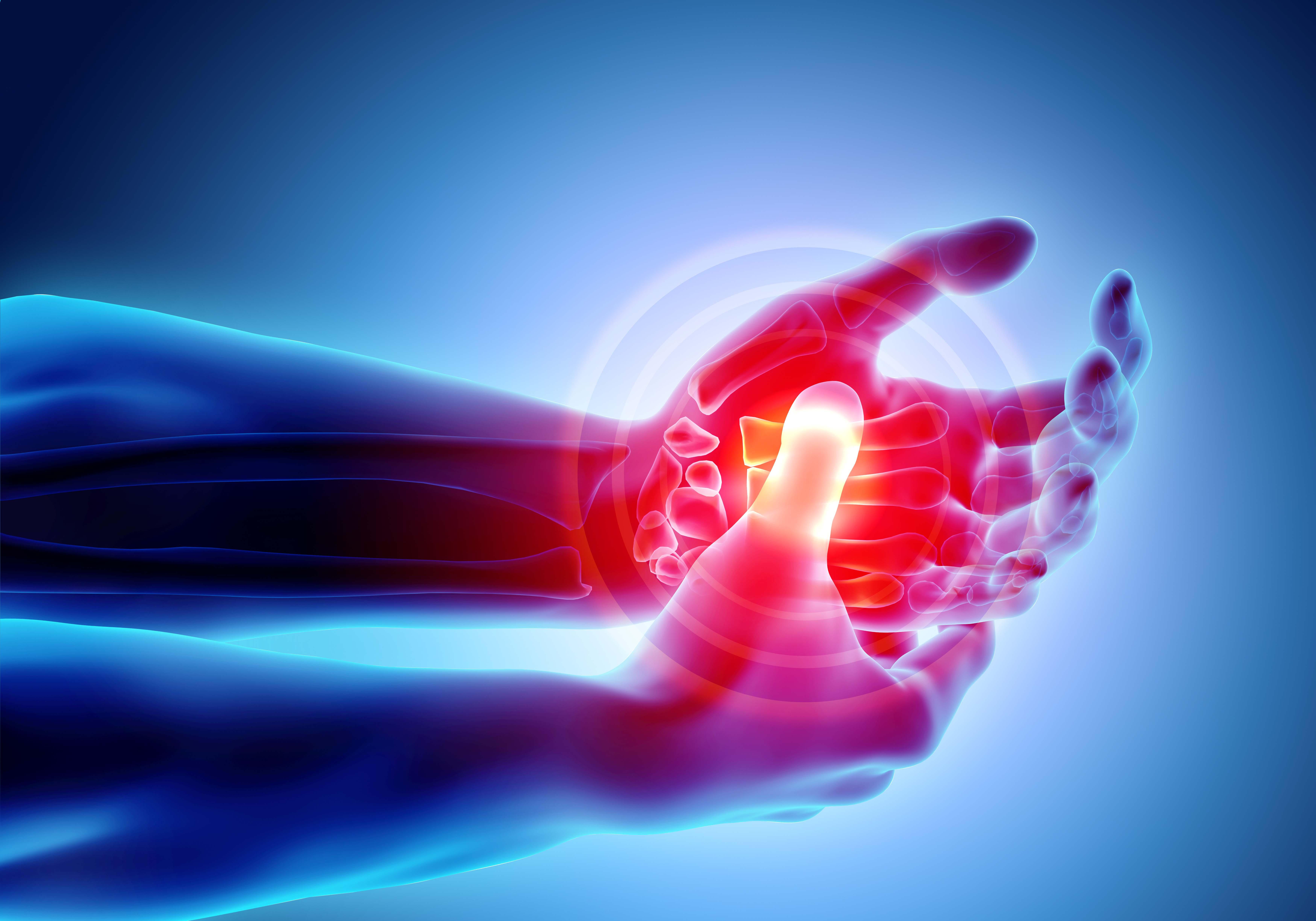 Understanding Arthritis: Symptoms, Treatments, and Medications